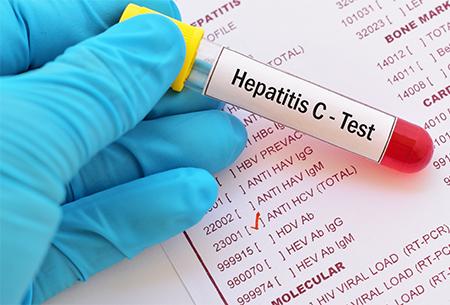 Hepatitis C test tube